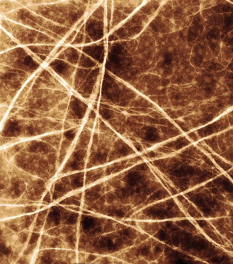 Image of collagen fibrils
