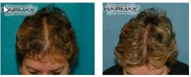 hairmax reviews before-after-45