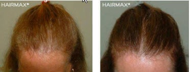 hhairmax reviews before-after-45_2