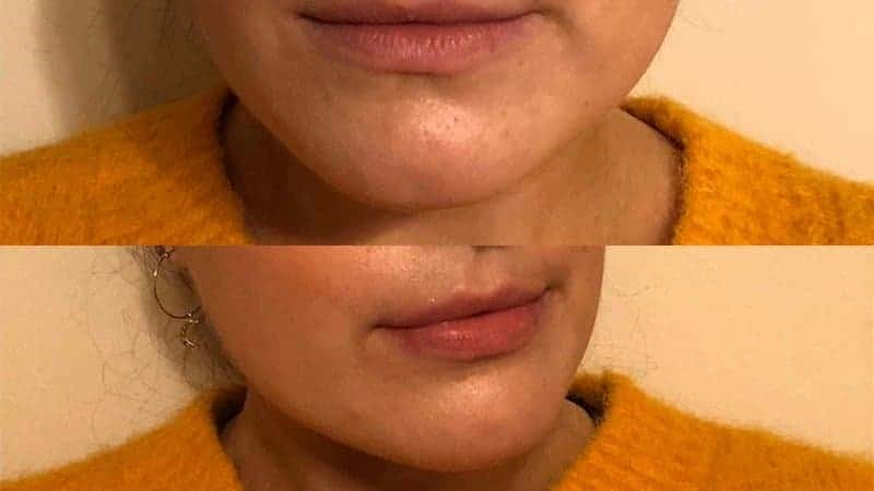 revive light therapy light care photo before and after