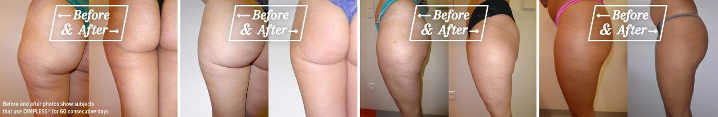 before_and_after_dimpless burn cellulite