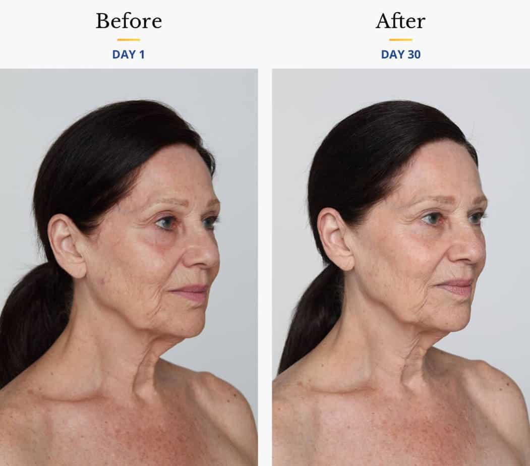 simple beauty age defying best collagen cream retinol moisturizer before and after
