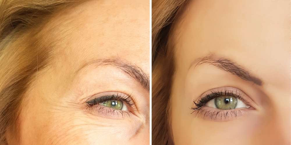 benefits of red and blue light therapy anti aging before and after